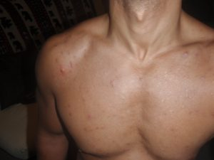 How to Get Rid of Chest and Back Acne